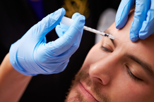 Wedding Day Prep: Exactly When to Start Botox Before Your Wedding